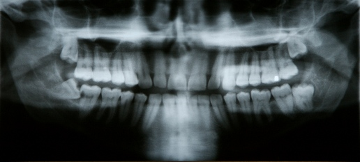 x-ray of patient with impacted tooth