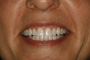 Ginger's smile after cosmetic dental surgery at Ponderosa Dental Group