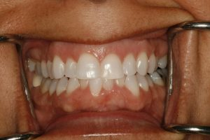 Ginger's smile before cosmetic dental surgery at Ponderosa Dental Group