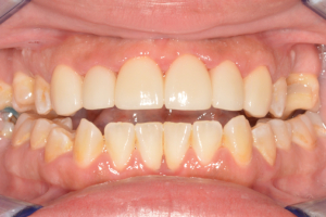 Ponderosa Dental Group cosmetic dentistry patient, after procedure