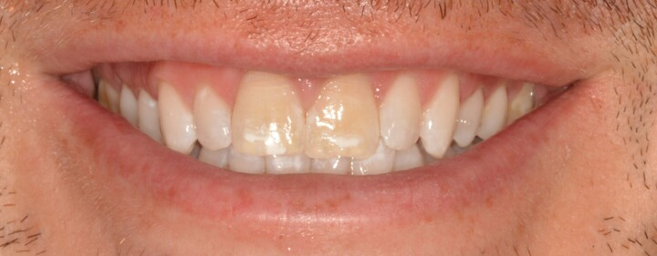 Laura, before cosmetic dentistry from Ponderosa Dental Group in Missoula, MT