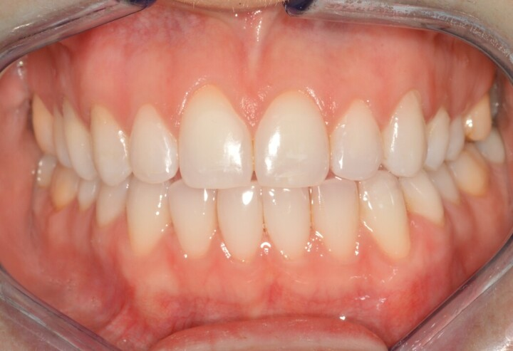 Lonnie, view of bite after cosmetic dentistry from Ponderosa Dental Group in Missoula, MT