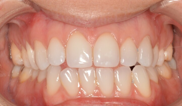 Lonnie, after cosmetic dentistry from Ponderosa Dental Group in Missoula, MT