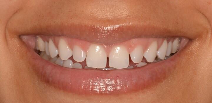 Ponderosa Dental Group cosmetic dentistry patient, before procedure