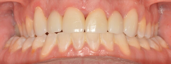 Ponderosa Dental Group cosmetic dentistry patient, after procedure
